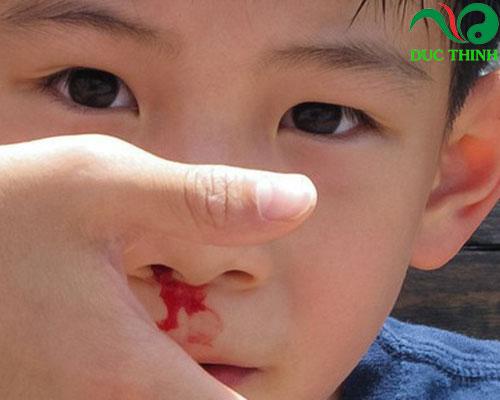 Cây đại kế hỗ trợ điều trị chảy máu cam